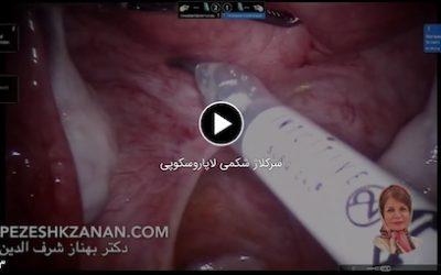 ویدئو سرکلاژ شکمی لاپاروسکوپی